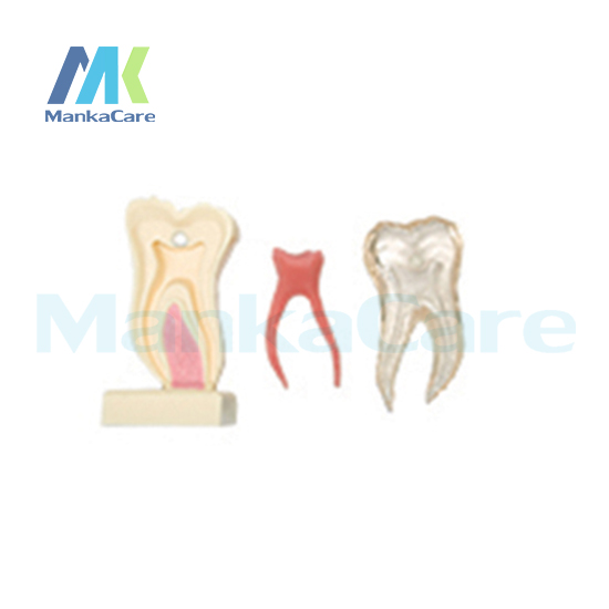 Manka Care - 6Times Anatomic Profile Model of Mandibular Molar/Made from high quality resin,silicone rubber and crystal molar model with 3 root molar teeth model