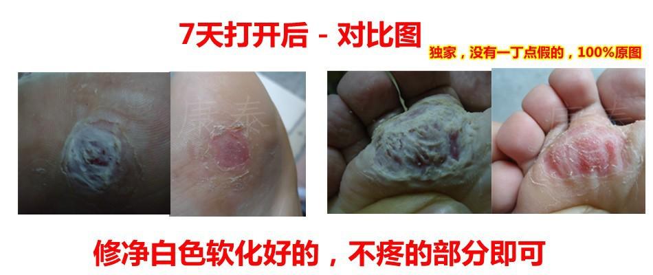 or warts bump treatment 7