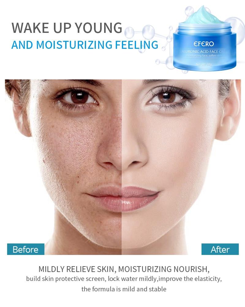 Отбеливающий крем с гиалуроновой кислотой, дневной крем для лица, увлажняющий крем от морщин, отбеливание кожи лица, крем против старения, к...