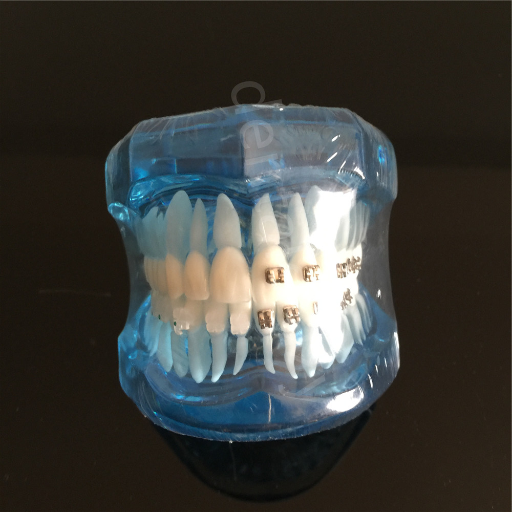 Teeth Model Blue Dental Orthodontics Communication Model With 4 Types of Brackets transparent dental orthodontic mallocclusion model with brackets archwire buccal tube tooth extraction for patient communication