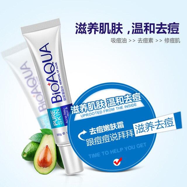 Bioaqua 30g Acne Treatment Blackhead Remova Anti Acne Cream Oil Control Shrink Pores Acne Scar Remove Face Care Whitening 2