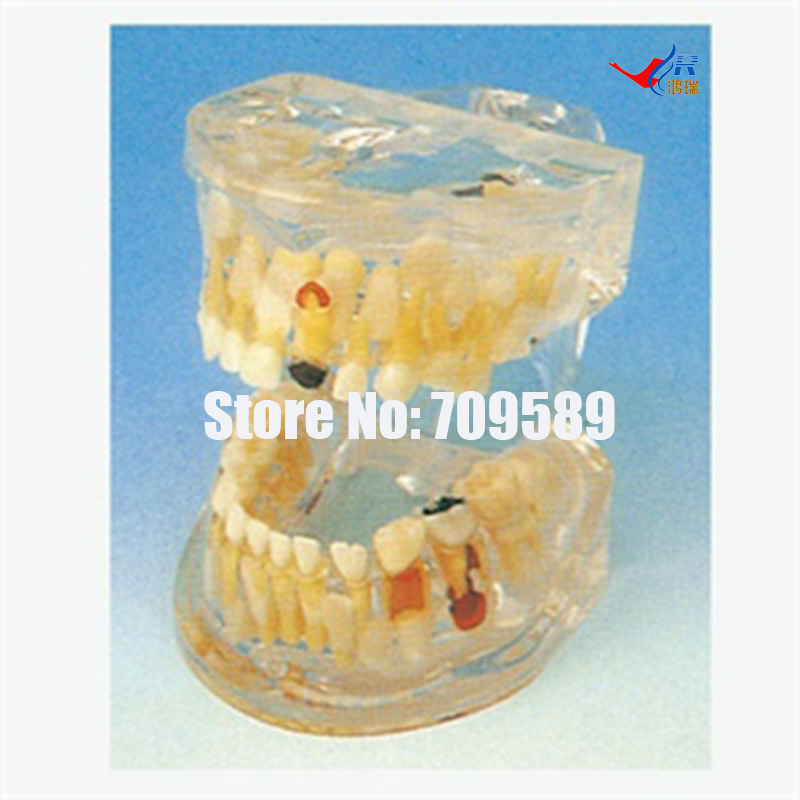 Transparent Milk Teeth Pathology Model, Dental Care Model transparent dental pathology model dental care model