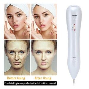 Image 5 - レーザー皮膚モル除去マシン顔そばかすダークスポットリムーバータトゥーいぼタグ除去ペンフェイスケア美容機器 SC304