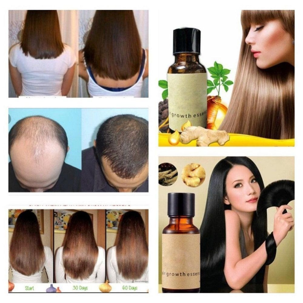 New Fast Hair Growth Products Natural With No Side Effects Anti Hair Loss Serum Grow Hair Faster N20