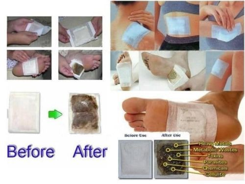 Foot Detox Patches/Pads Cleansing Body Toxins Slimming Herbal (20pcs=10pcs Patches+10pcs Adhesives) 7