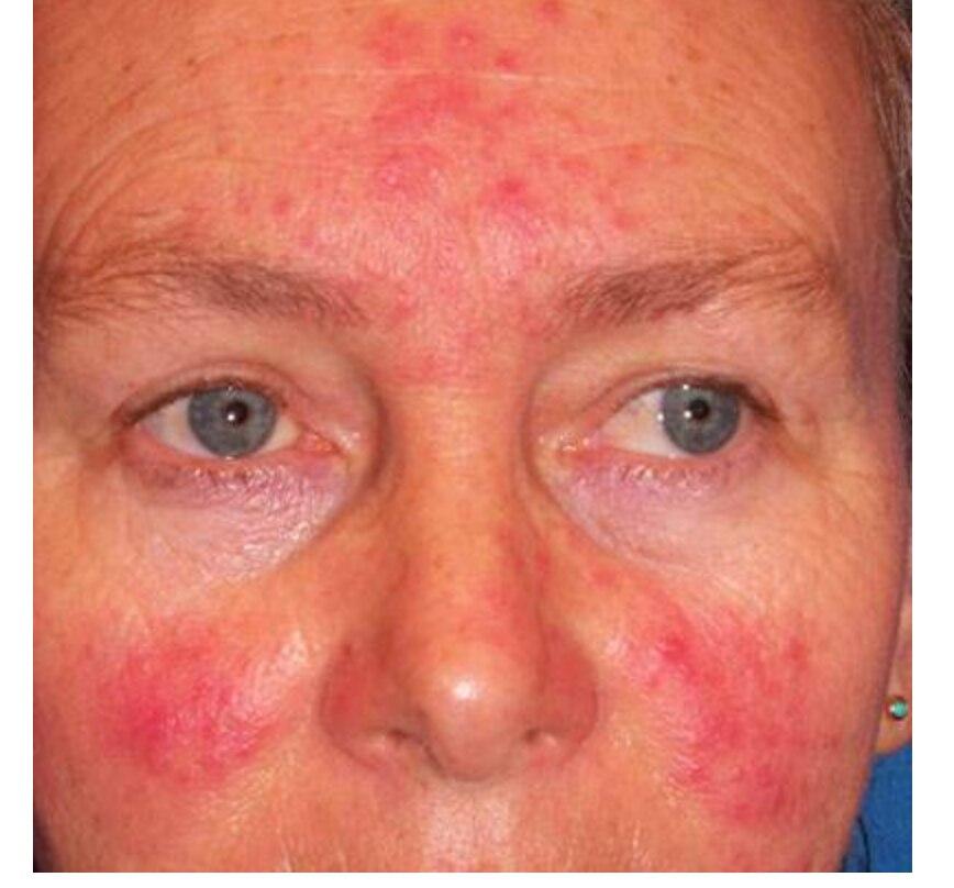 Rosacea Cream Red Nose Ointment Remove Blackhead Acne Cream Skin Care Herbal Anti Acne And Mite Acne Rosacea Treat Shrink Pores