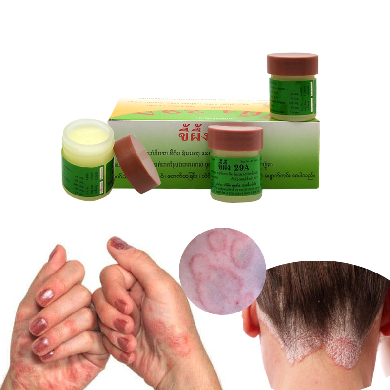 Thailand 29A Natural Ointment Psoriasi Eczma Cream Works Really Well For Dermatitis Psoriasis Eczema Urticaria Beriberi(China)