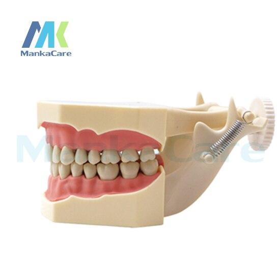 Manka Cura-SF Tipo Modello di Studio/32 pz Dente/Soft Gum/Vite fisso/DP Articulator Oral Modello Denti Dente ModelloManka Cura-SF Tipo Modello di Studio/32 pz Dente/Soft Gum/Vite fisso/DP Articulator Oral Modello Denti Dente Modello