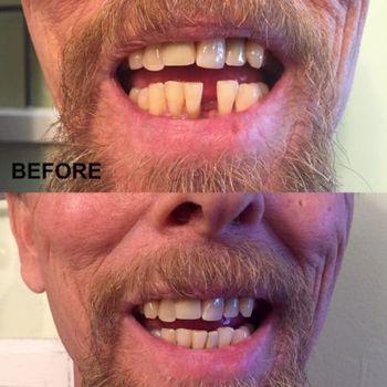 Dental Veneers For Teeth False Smile Veneers Removable Veneers On Teeth  Smile Temporary Tooth Fix Kit Natural Color
