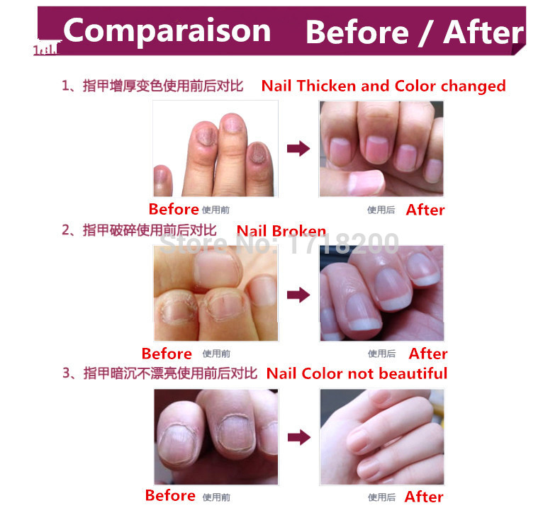4 Packs toe nail fungus cream /cure of nail fungus/ onychomycosis Paronychia /nail fungal infection herbal Finger ointment-in Nail Treatments from ...