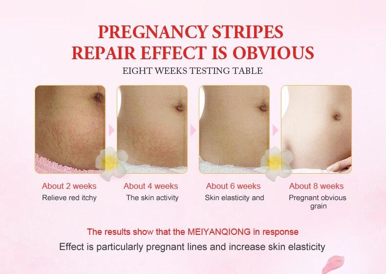 da pele maternidade creme corporal remover cicatriz pós-parto