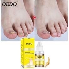 10 мл средство для лечения грибков ногтей Onychomycosis высокое качество средство для удаления грибка Уход за ногтями восстанавливающая жидкость