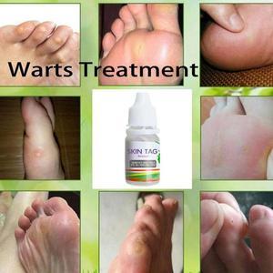 Image 3 - 10 Ml Chinese Geneeskunde Gips Behandeling Voet Maïs Verwijderen Wratten Voetverzorging Zalf Wratten Verwijdering Pomada De Verruga
