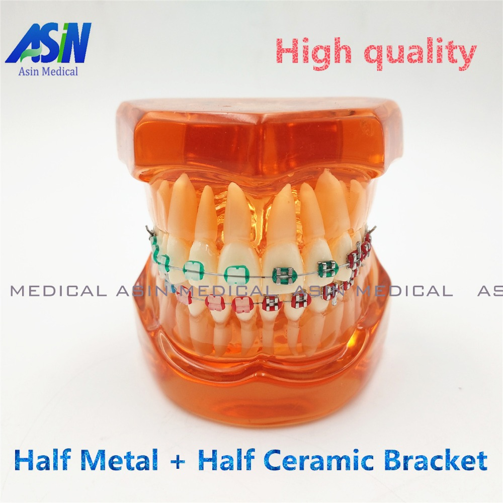 2017 Teeth model With metal & ceramic brackets Irregular tooth Ortho Metal dentist patient student learning model 2016 dental orthodontics typodont teeth model half metal half ceramic brace typodont with arch wire