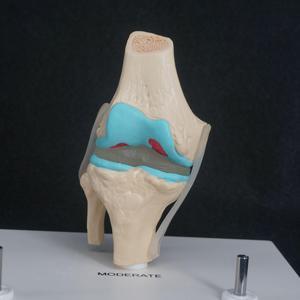 Image 5 - กายวิภาคของมนุษย์เสื่อมเข่า Joint ชุดการแพทย์ Skeleton Anatomy ทรัพยากรการเรียนการสอน