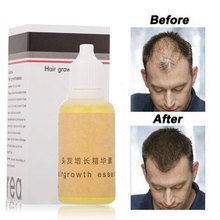 Hair Growth Ointment Fast Effective 20ml Healthy Hair Growth Hair Growth Fluid Baldness Alopecia Hair Growth Essence