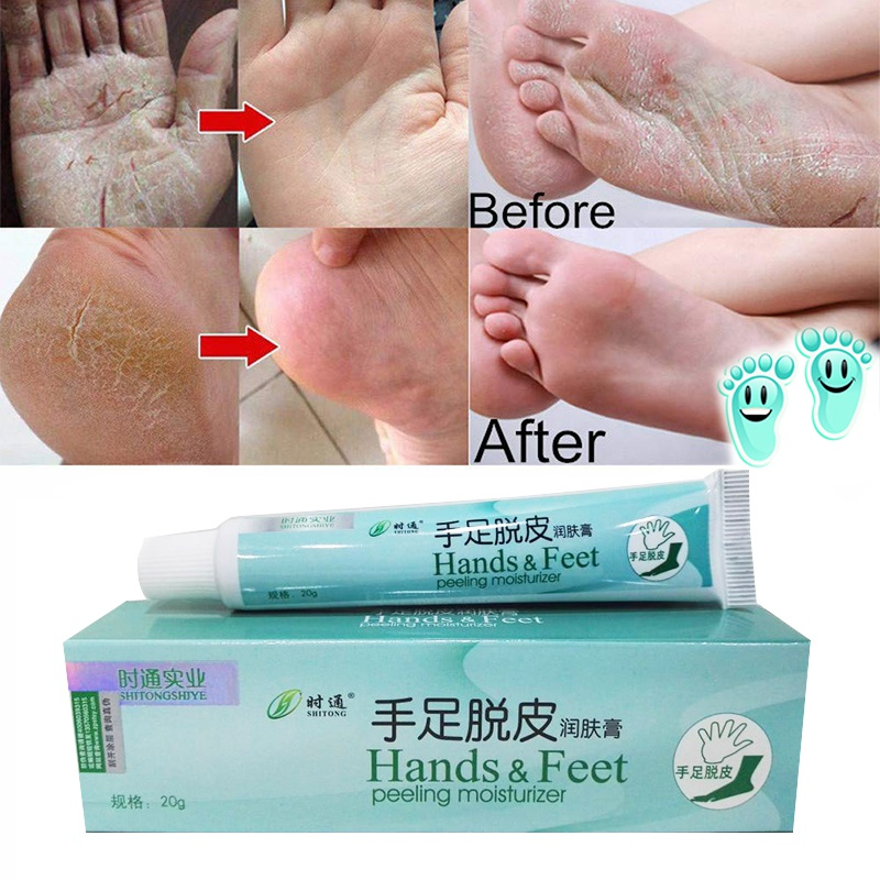 20g Heel Chapped Peeling Skin Repair Creams Moisturizing Anti-Drying Anti-Crack Feet Hand Skin Care Cream Drop Shipping