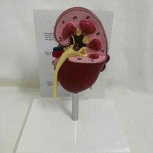 1 шт. анатомическая модель 2-сторонняя больных анатомии Medica l клубочках почек нефрона r еналь анатомическая модель