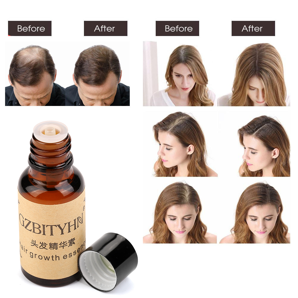 Natural Fast Hair Growth Essence Oil Ginseng Scalp Health Hair Loss Treatment Anti Hair Loss Liquid Grow Care Essence Oil
