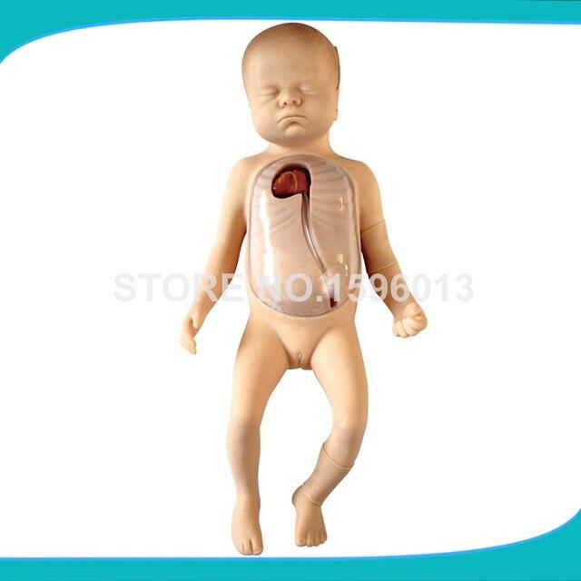 PICC für Neugeborenen modell. Neugeborenen Peripheren und Zentralen ...