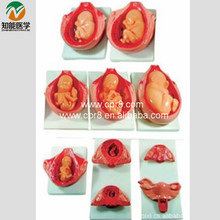 Fetus Model BIX-A1083 WBW261