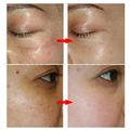 Strong effects Powerful whitening Freckle cream 40g Remove melasma Acne Spots pigment Melanin face care cream 1pcs
