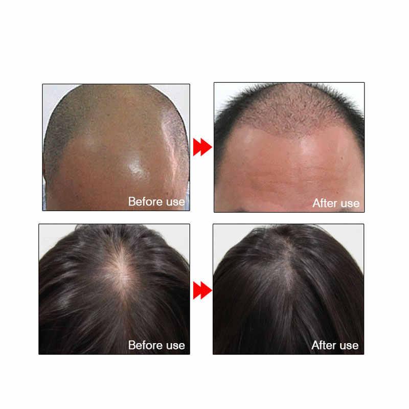 ARTISCARE Schnelle Leistungsstarke Haar Wachstum Essenz Produkte Ätherisches Öl Flüssigkeit Behandlung Gegen Haarausfall Haarpflege Andrea 20 ml
