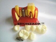 SHUNZAOR 2017 New 4 Times Dental Teeth Implant Model for Doctor-Patient Demonstration and Porcelain Bridge Restoration