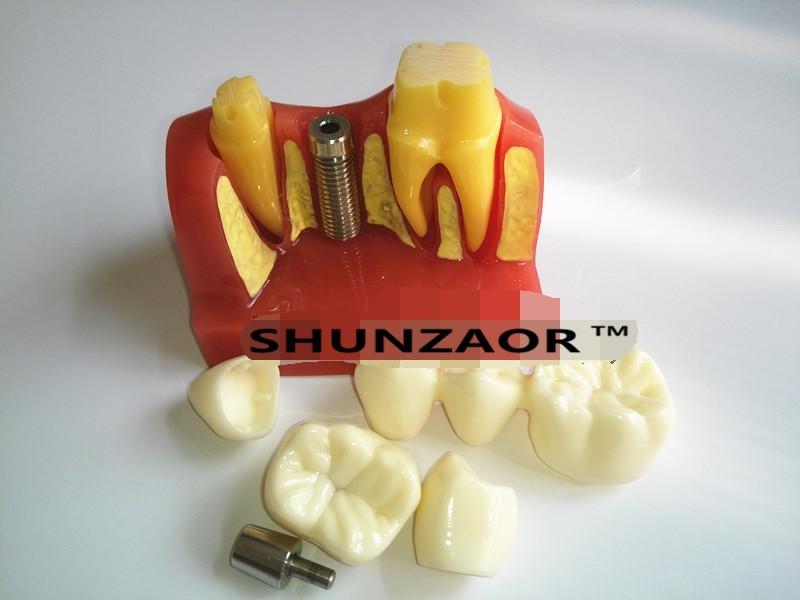 SHUNZAOR New 4 Times Dental Teeth Implant Model for Doctor-Patient Demonstration and Porcelain Bridge Restoration 6 times anatomy teeth model teeth model dental model