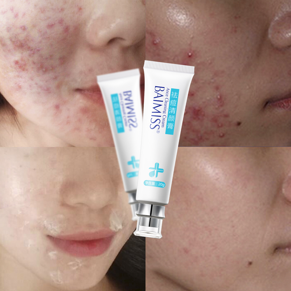 BAIMISS Acne Cleaning Cream Skin Care Remove Repair Comedone Pimple Acne Quickly Face Acne Cream Remover Anti Acne 2pcs цена