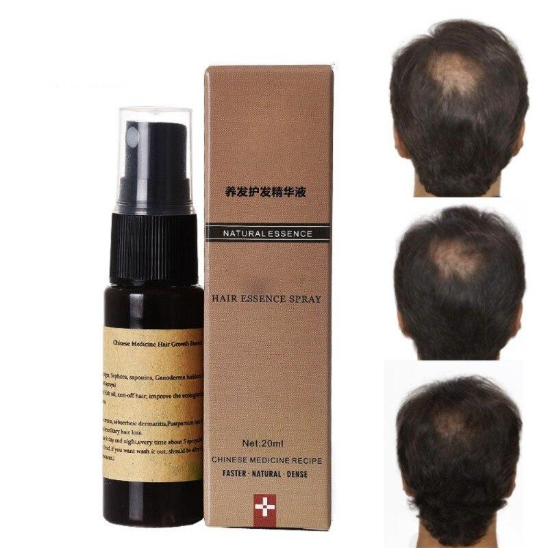 New Organic Fast Hair Growth Essence Liquid 20m Anti Gray Hair Spray Shampoo Serum Hair Lo
