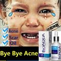 New Arrive BIOAQUA Skin Care Acne Treatment Face Care Acne Scars Cream Anti Acne Removal Gel Whitening Moisturizing Cream 30ml