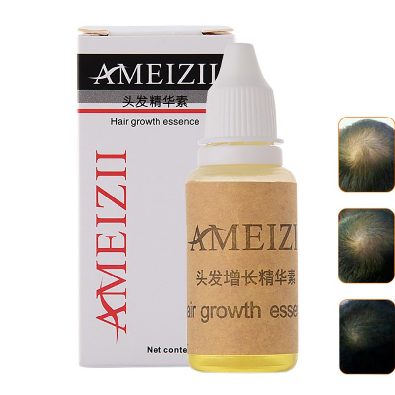 20ml Hair Loss Product Hair