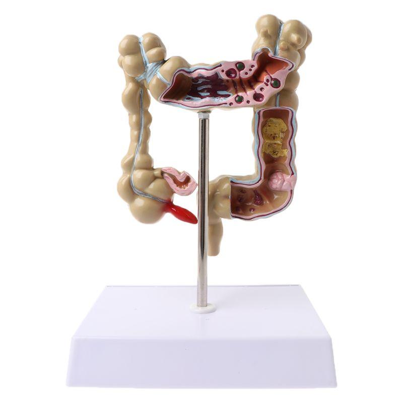 Human Colorectal Lesion Model Pathological Anatomy Colon Diseases Intestine Medical Teaching Learning Tool