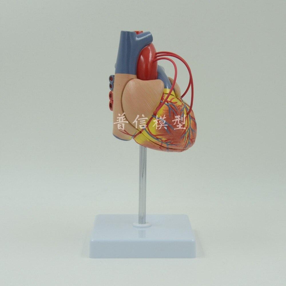 DongYun brand Human heart anatomical model heart bypass model coronary heart disease model Medical Science teaching supplies