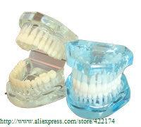 taille modèle dentaires (HH)
