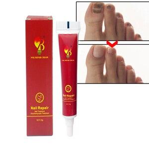 Image 4 - Chinese Geneeskunde Gips Nail Behandeling Crème Onychomycose Anti Nail Infectie Gevechten Bacteriën Natuurlijk zalf