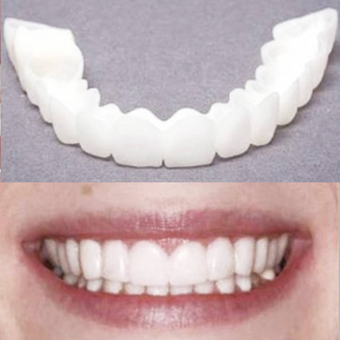 Silicone Perfect Smile Veneers Teeth Upper Beauty Tool Teeth For Men Women Natural Cosmetic Fake Tooth Cover Orthodontics Tool
