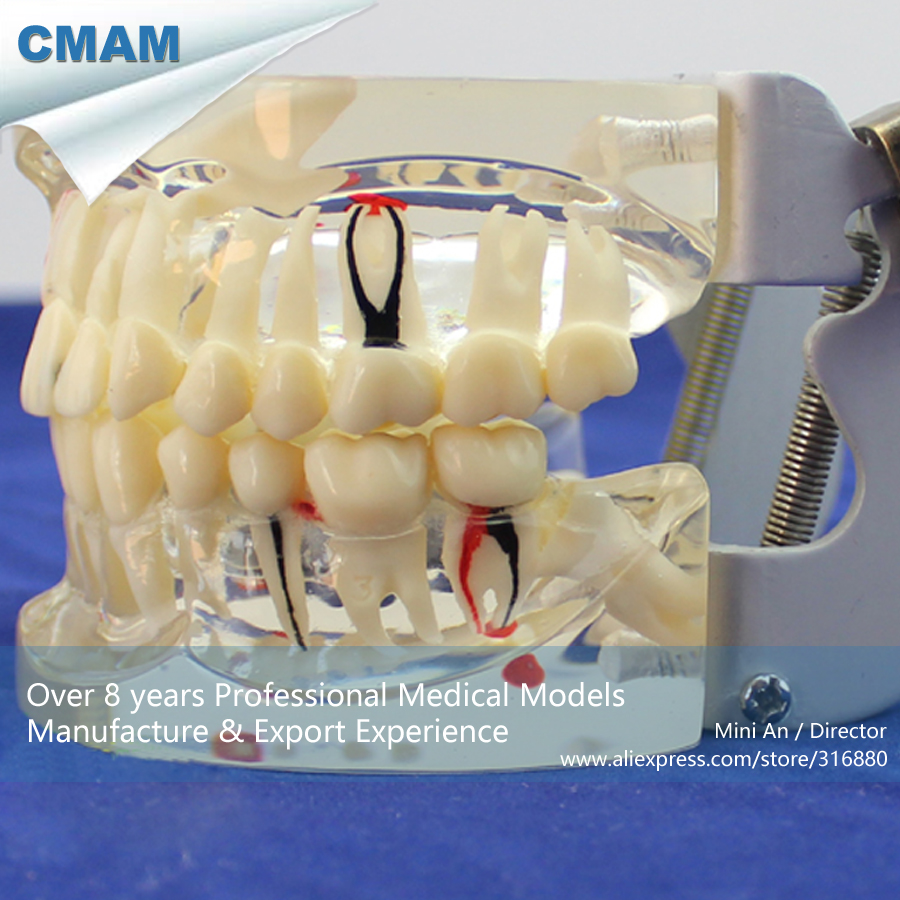 12566 CMAM-DENTAL07 Human Dental Demonstration Model of Periodontal Caries,  Medical Science Teaching Anatomical Models dental pathology model anatomical model teeth model dental caries periodontal disease demonstration model gasen den050