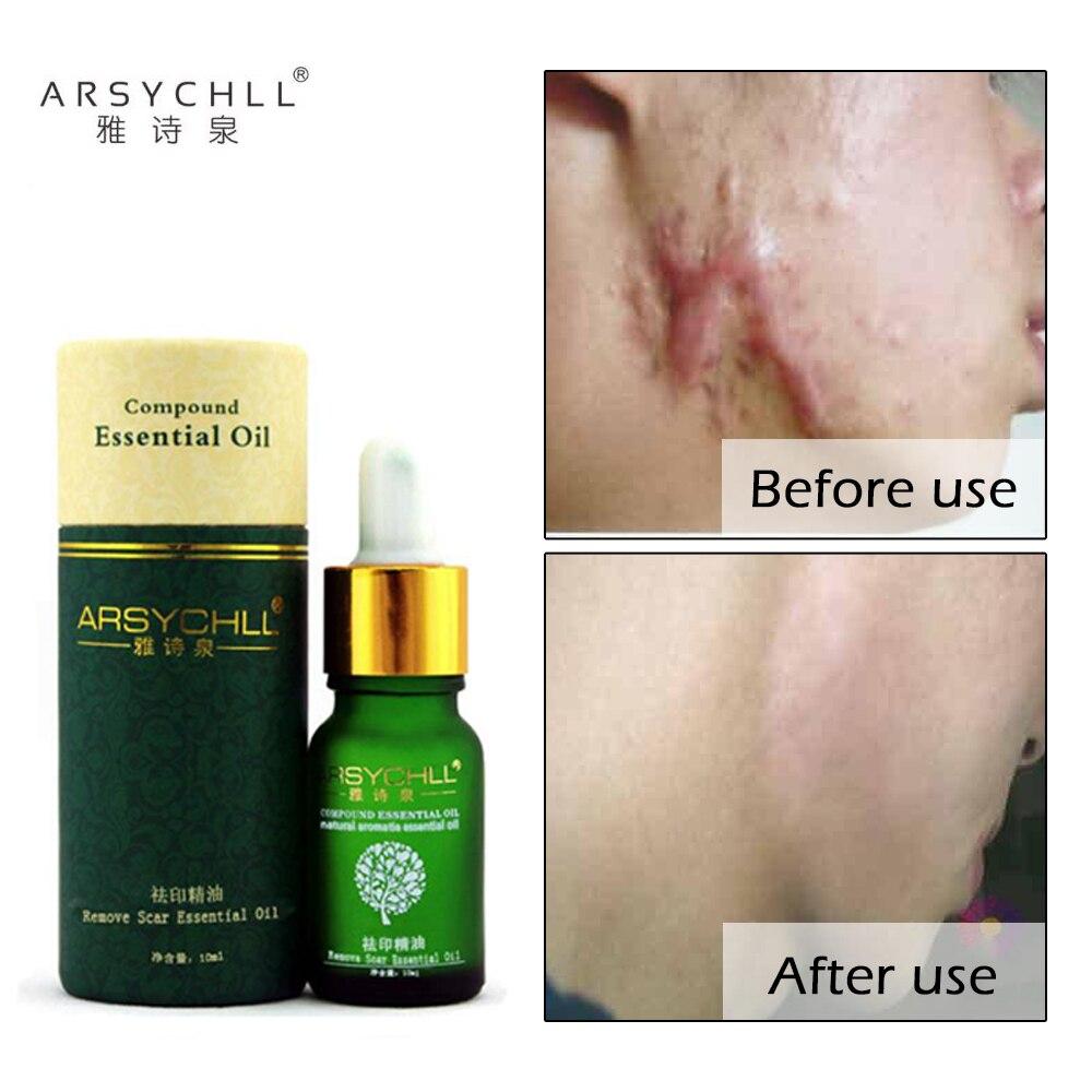 Creme para Remoção de Acne e Cicatriz, Creme para Cuidados com a Pele, Tratamento de Manchas e Cicatriz, Óleo Clareador e Removedor de Espinhas