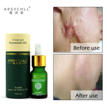 Ansiktspleie Acne Scar Removal Cream Acne Spots Hudpleie Treatment Stretch Marks Whitening Fjern Acne Face Essential Oils Care
