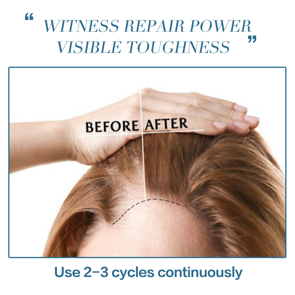 Anti Hair Loss Nourishing Essence Spray Natural Extract Relieve Hair Loss and Strongen Roots Nourish Scalp Thicken Hair 60ml 2