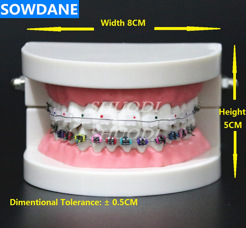 Dental Orthodontic Treatment Model Typodont With Ortho Metal Ceramic Bracket Arch Wire Buccal Tube Ligature Ties