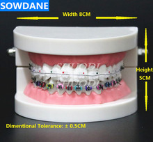 Dental Orthodontic Treatment Model With Ortho Metal Ceramic Bracket Arch Wire Buccal Tube Ligature Ties