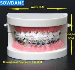 Modelo de tratamento ortodôntico dental typodon com orto metal suporte cerâmico arco fio bucal tubo ligadura laços