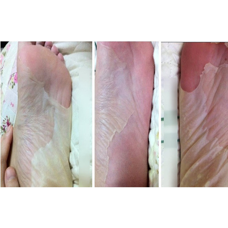 ноги пилинг