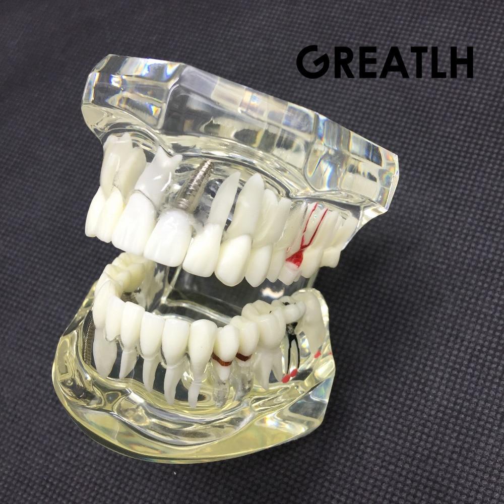 Dental Implant Disease Teeth Model With Restoration Bridge Tooth Dentist For Medical Science Dental Disease Teaching Study 2018 new denture teeth model 6x caries comparison model tooth decay model dentist for medical science teaching