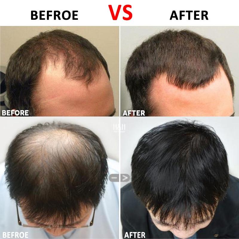 Micro-aiguille en titane pour la repousse du visage et des cheveux Anti-perte de cheveux