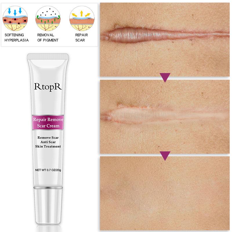 RtopR Acne Scar Stretch Marks Remover Cream Skin Repair Face Cream Acne Spots Acne Treatment Blackhead Whitening Cream Skin Care 1