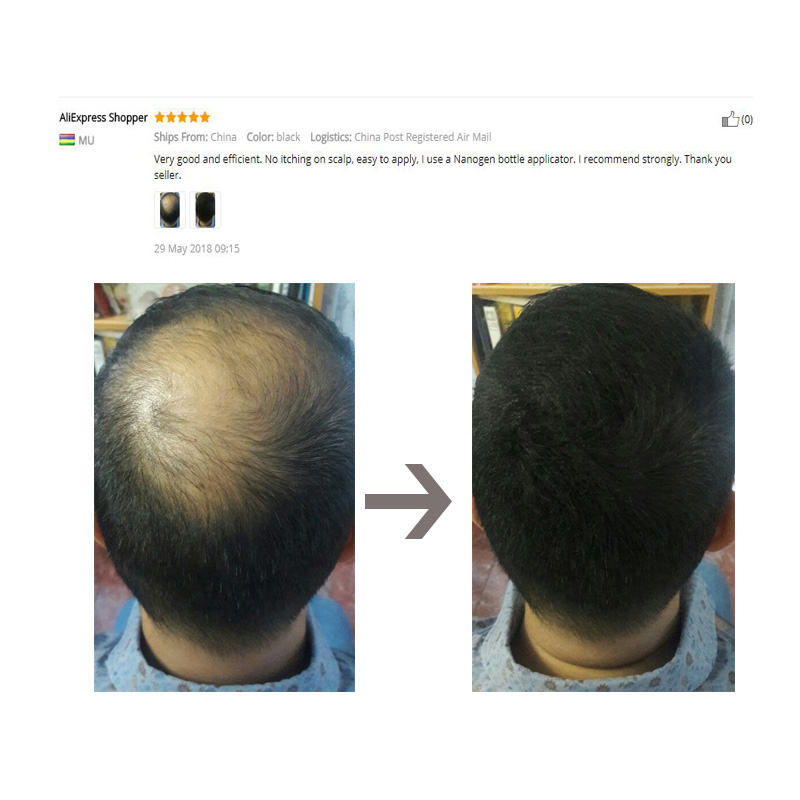 Sevich Hair Growth Powder Hair Building Fiber in Hair Loss Products Thickening Wig hair fiber Salon Beauty Concealer Care 2